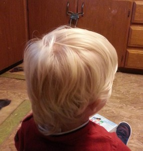 Back of boy's head before haircut due to lice.
