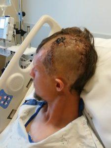 Kraston After Brain Surgery