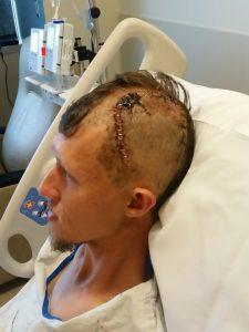 Kraston After Surgery